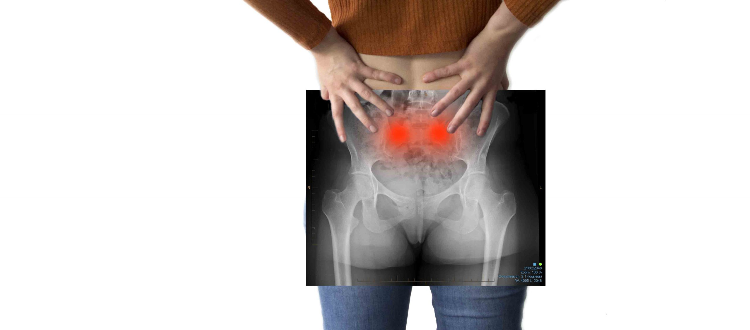 sacroiliac joint pain in pregnancy